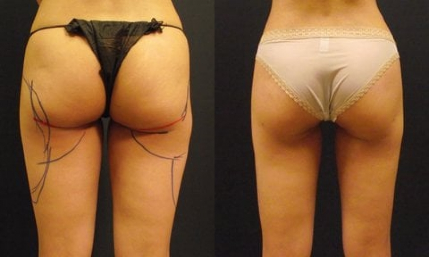 Liposuction can smooth your bulges